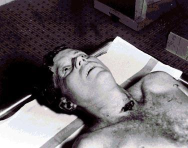 JFK autopsy photo